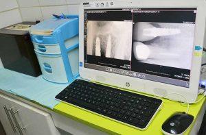Clinica-Dental-Alcudia-Galeria-de-Fotos-5