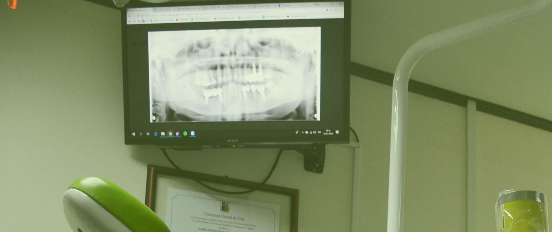 Centro Radiológico Dental y Máxilofacial